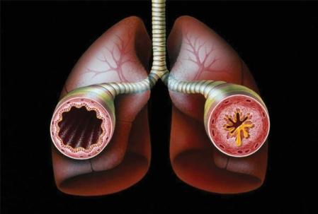 asthma_bronchial-3